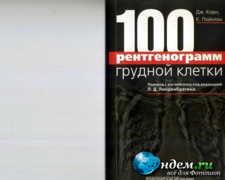 Дж.Корн, К.Пойнтон - 100 рентгенограмм грудной клетки /100 chest X-ray problems (2010)